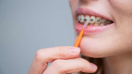 Unrecognizable Caucasian woman cleans braces with a brush. Close-up of female teeth with brackets