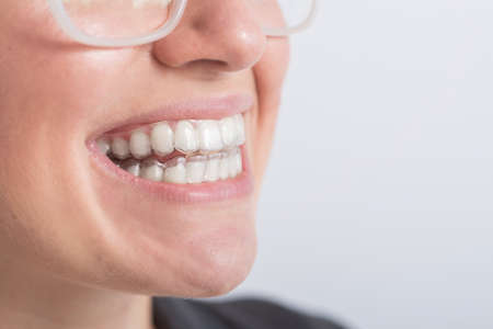 Close-up of a woman putting on transparent plastic retainers. The girl uses a device to straighten her teeth