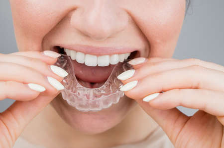 Close-up portrait of a woman putting on a transparent plastic retainer. A girl corrects a bite with the help of an orthodontic device