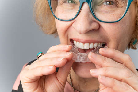 A happy elderly woman puts on transparent removable braces. Cosmetic dentistry for all ages 写真素材