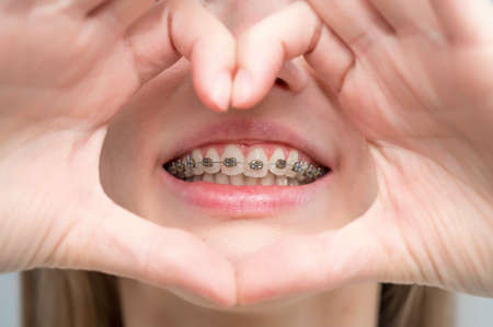 Caucasian woman in braces holding fingers in the shape of a heart.