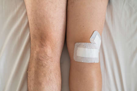Close-up of male legs with knee taped with tape after laparoscopic minisk surgery 写真素材