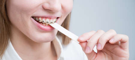 Young woman with metal braces on her teeth is chewing gum. The girl is eating gummy candy