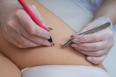 The doctor does electro epilation of the bikini zone to a woman in the salon. An alternative way to permanently remove unwanted body hair