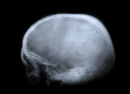 x rays negative: X-ray image of a human skull.