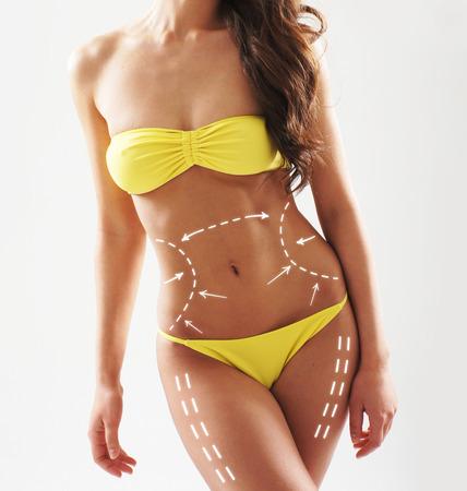 mujer celulitis: Hermoso cuerpo femenino y en forma con las flechas de giro. La cirugía plástica, nutrición saludable, la liposucción, el deporte y el concepto de eliminación de la celulitis.