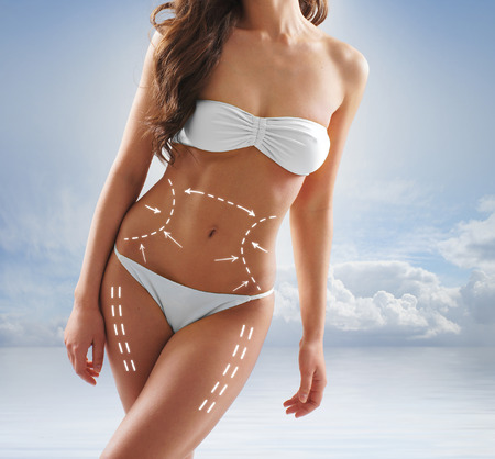 liposuction: Young sexy brunette in swimsuit Stock Photo