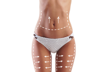 Female body with the drawing arrows on it isolated on white. Fat lose, liposuction and cellulite removal concept. 스톡 콘텐츠