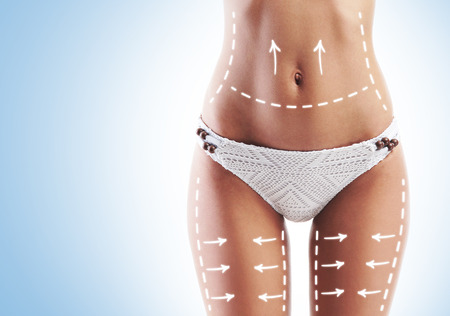 fat belly: Female body with the drawing arrows. Fat lose, liposuction and cellulite removal concept.