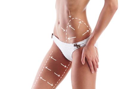 mujer celulitis: Carrocería femenina con las flechas de dibujo sobre el mismo aislado en blanco. Perder grasa, la liposucción y el concepto de eliminación de la celulitis. Foto de archivo