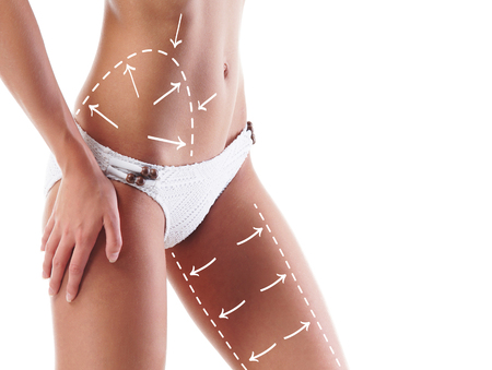 Beautiful and fit female body with the drawing arrows. Plastic surgery, healthy nutrition, liposuction, sport and cellulite removal concept. Stock Photo