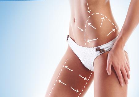 mujer celulitis: Carrocería femenina con las flechas de giro. Perder grasa, la liposucción y el concepto de eliminación de la celulitis.