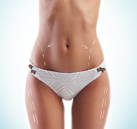 liposuction: Female body with the drawing arrows on it. Fat lose, liposuction and cellulite removal concept.