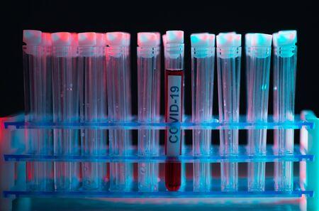 Alert in lab. Scientific laboratory close-up. Pandemic disease, healthcare, vaccine research and coronavirus covid-19 test.