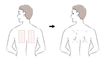 Before and after men for patch test