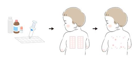 Patch test procedures and babies undergoing a patch test