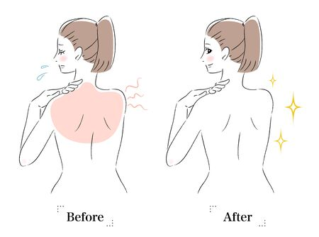 Illustration of a woman with a tan on her back before and after