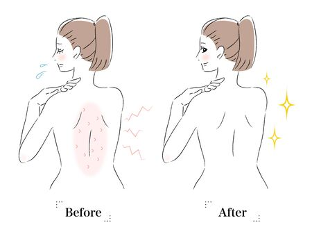 Illustration of woman with itchy back before and after