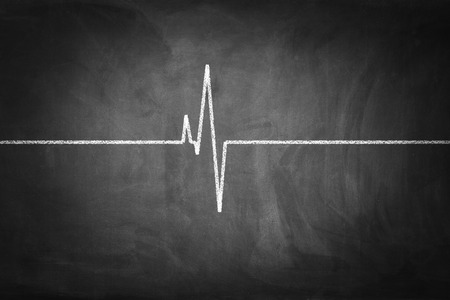 Heart Pulse on chalkboard textured background. Фото со стока