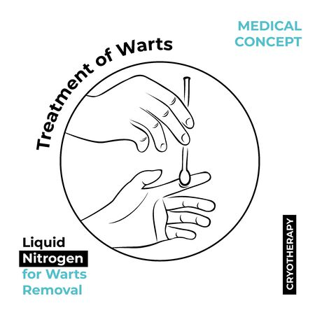 Round icon about the treatment of warts. Burning a wart with liquid nitrogen. A hand holds a stick with nitrogen and burning a wart on his hand.