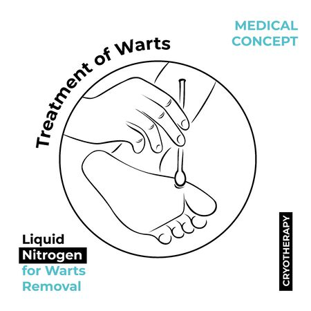 Round icon about the treatment of warts. Burning a wart with liquid nitrogen. A hand holds a stick with nitrogen and cauterizes a wart on his leg.