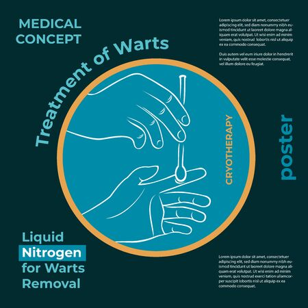 Medical poster. Round icon about the treatment of warts. Burning a wart with liquid nitrogen. A hand holds a stick with nitrogen and burning a wart on his hand. Illusztráció