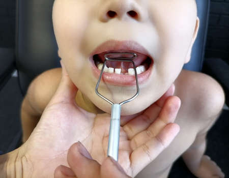 The boy's tongue in the classroom with a speech therapist performs exercises. dyslexia. Using special means of speech correction. Application of tools for speech triggering and correction.