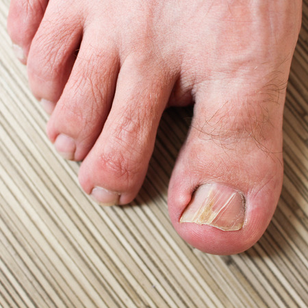 toenail: Damaged toenail Stock Photo