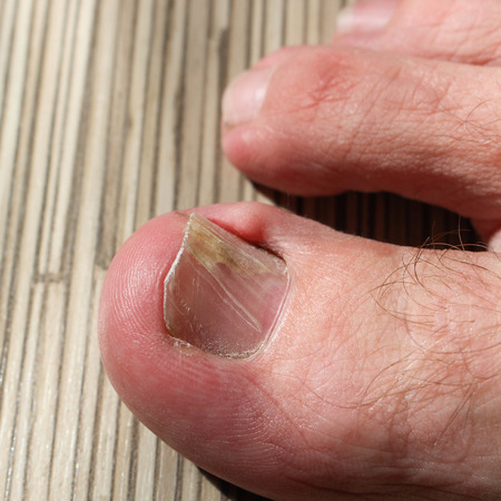 fungal: Damaged toenail Stock Photo