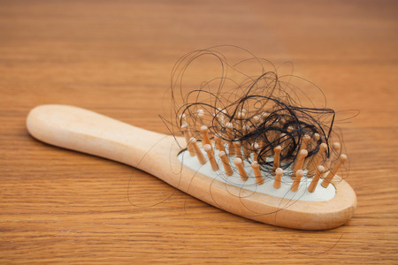 pelade: Fallen hair on the comb