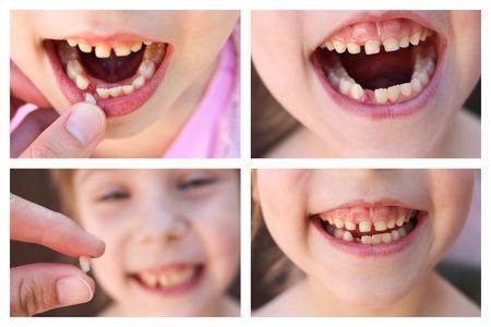 Een collage van het kind is van de baby tand verloren. 6 jaar oude kind losse tand. Het meisje houdt de tand in zijn hand. Nieuwe maaltand groeien.