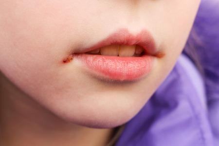 Herpes op de lippen van het kind. Stockfoto