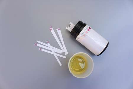 Urine test strips on a gray background.