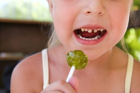 Child eats candy. Girl has caries on teeth. Stok Fotoğraf