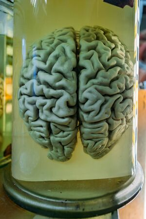 Human brain in glass jar with formaldehyde for medical studies.