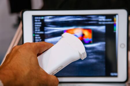 Modern portable ultrasound machine in clinic laboratory of sonography diagnostics.