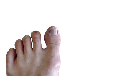 Feet with bruise blood in Toe with fungus