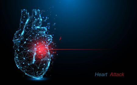 Attacco di cuore umano. Linee di forma di malattie cardiache, triangoli e design in stile particellare