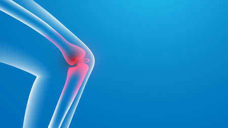 Knee painful. x-ray. Joint pains. 3d Vector illustration