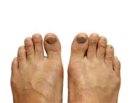 Feet with bruise on the toe nail isolated on white photo