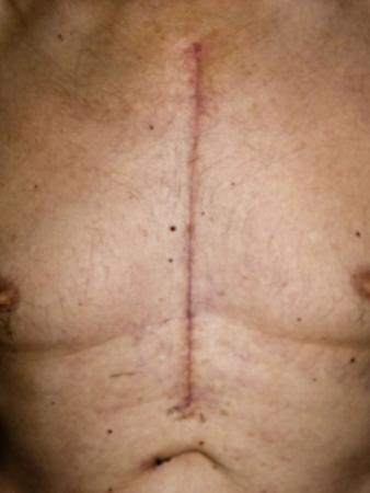 scar: scissor scar from open heart surgery