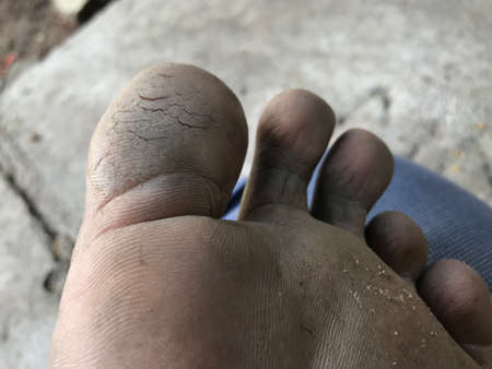cracked heels on fingers of left legs which needs medication