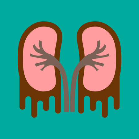 A human organs kidney anatomy medical icon. Pyelonephritis and Urolithiasis disease on Flat style