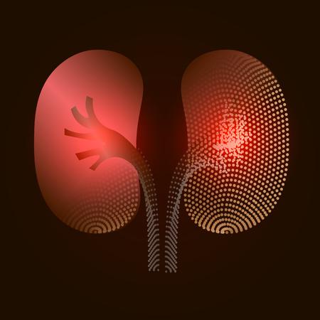 Nieren met een pijnpunt. Gestileerde overgang van een echt orgel naar een röntgeneffect. Medische illustratie van nierziekte