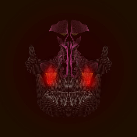 Medical illustration of the points. Odontogenic sinusitis. Inflammation of the maxillary sinuses due to a disease of the roots of the tooth with a point of pain and inflammation. X-ray effect 10 eps