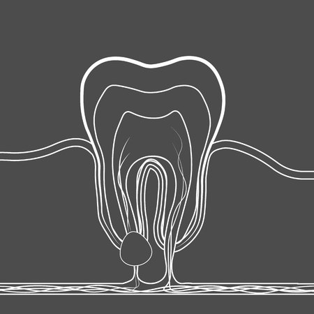 dental disease linear icon. Medical illustration of tooth root inflammation, tooth root cyst, pulpitis. 10 eps Ilustracja