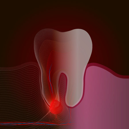 The transition from a real tooth to a point X-ray effect with a point of pain and inflammation. Medical illustration of tooth root inflammation, tooth root cyst, pulpitis. 10 eps Ilustracja