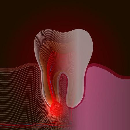 Efecto de rayos X. La transición de un diente real a un efecto de rayos X lineal con un punto de dolor e inflamación. Ilustración médica de inflamación de la raíz del diente, quiste de la raíz del diente, pulpitis. 10 eps