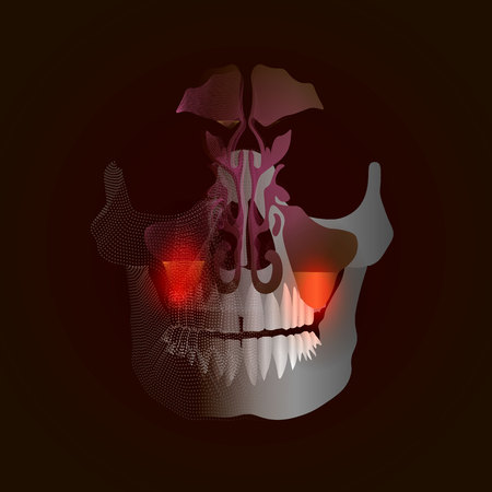 The transition from a real image to a spot X-ray effect with a point of pain and inflammation. Odontogenic sinusitis. Inflammation of the maxillary sinuses due to a disease of the roots of the tooth with a point of pain and inflammation. 10 eps