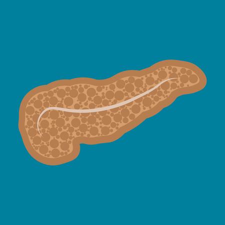 Diseases of the pancreas. Pancreatitis. dysbiosis, nausea vomiting belching